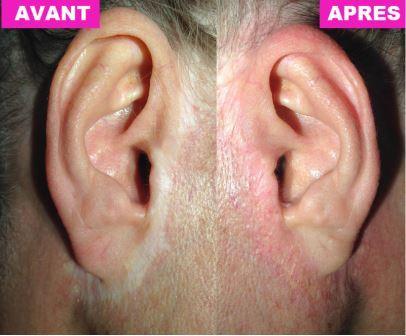 Cicatrices à l'oreille