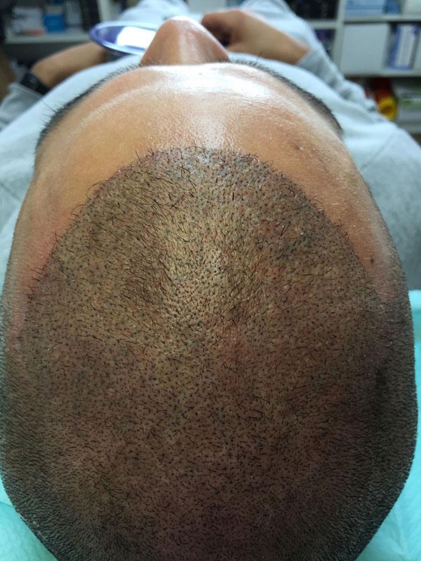 cicatrice cuir chevelu