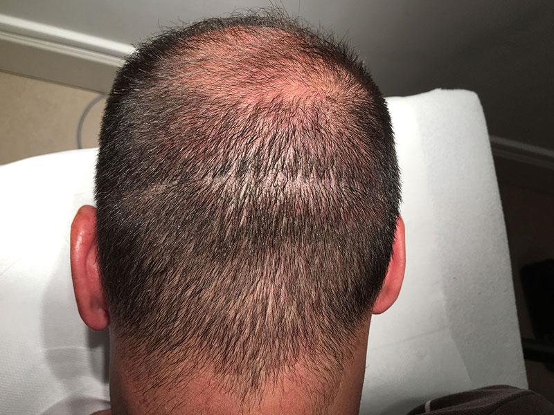 Comment cacher une cicatrice du cuir chevelu ?