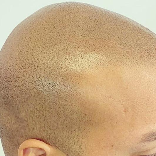 cicatrice du cuir chevelu