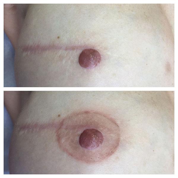 tatouage areole mammaire