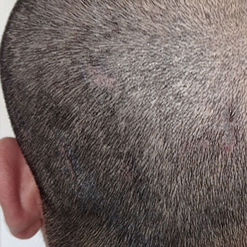 dermopigmentation du cuir chevelu